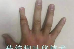 手指(断指)再造问题一3D全形手指再造与传统手指再造差异?
