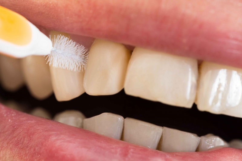 一般洗牙和激光洗牙的区别是什么帮助大家正确洗牙